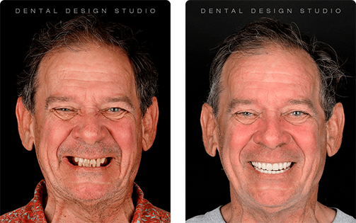 all on 4 dental implants cancun